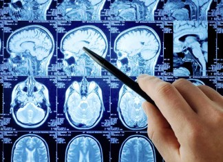 MRI, Head - Close-up Engineering - Credits: psicologiaeconsumi.it