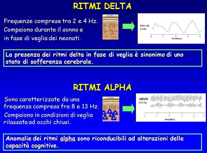 Mild Cognitive Impairment, EEG - Ritmi Delta