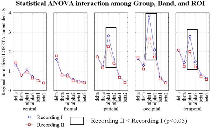 ANOVA - Mild Cognitive Impairment