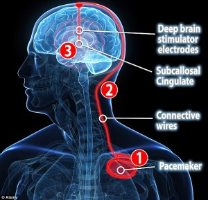 DBS- stimolazione cerebrale profonda