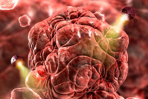 Nanoparticelle attaccano il cancro