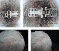 Prima e dopo l'applicazione delle Top Closure sulla ferita