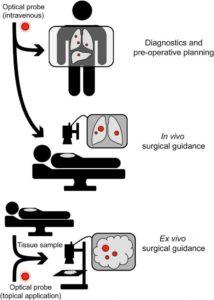 processo chirurgico con le sonde fluorescenti