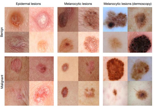 Diversi esempi di tumori alla pelle