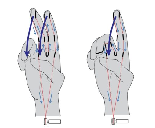 Meccanismo di movimento: entrambi (a) o separati (b)