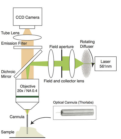 Computational Cannula Microscopy (CCM)
