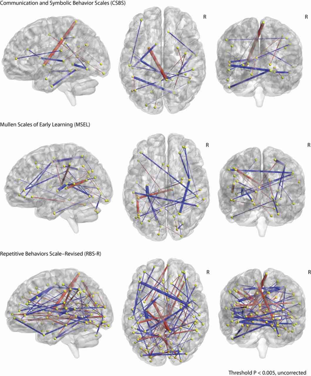 Tratti distintivi nelle scansioni cerebrali che hanno permesso la previsione dell'autismo nei bambini