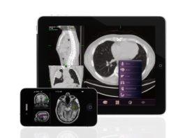 Web, App e Rete allungano la vita dei malati oncologici