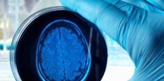Criomicroscopia elettronica come aiuto nella cura dell'Alzheimer