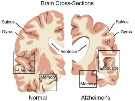 Studiare l'Alzheimer con la criomicroscopia elettronica