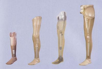 Protesi modulari