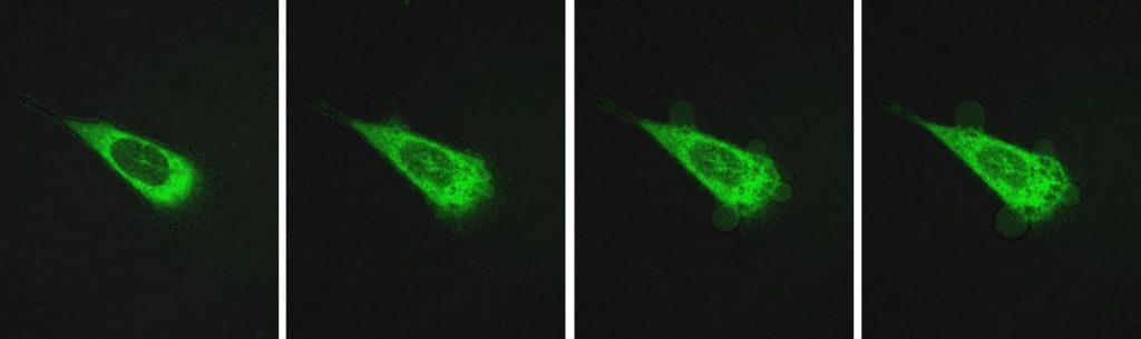 Le molecole motorizzate distruggono una cellula tumorale della prostata