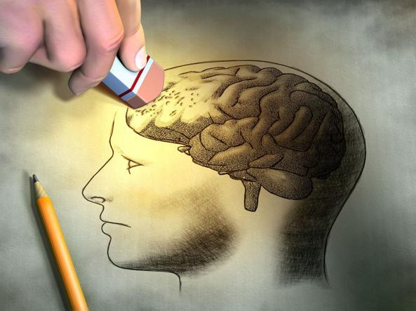 Rappresentazione dell'Alzheimer