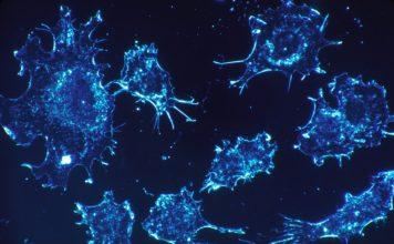 Combattere il cancro con il calore: ecco le nanoparticelle autoregolanti
