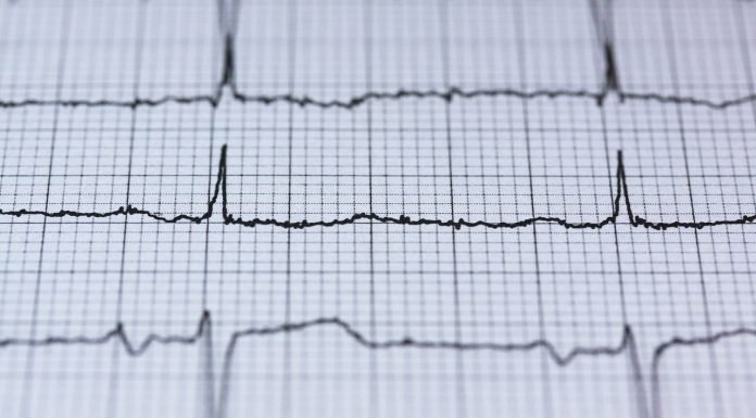Sicurezza informatica: dopo l'impronta digitale arriva la scansione cardiaca