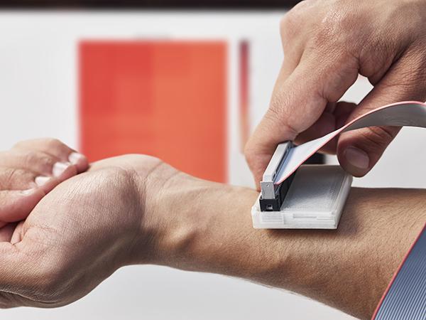 James Dyson Award: vince il dispositivo portatile che rileva il melanoma