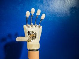 Impiantata per la prima volta in Italia la mano bionica sensibile