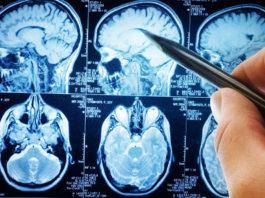 Tecnologie per prevenire attacchi epilettici