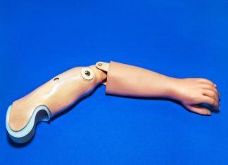 Arto protesico